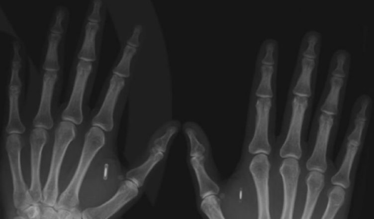 Microchip implantado en las manos