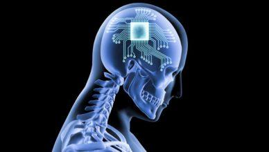 Chip implantado en el cerebro